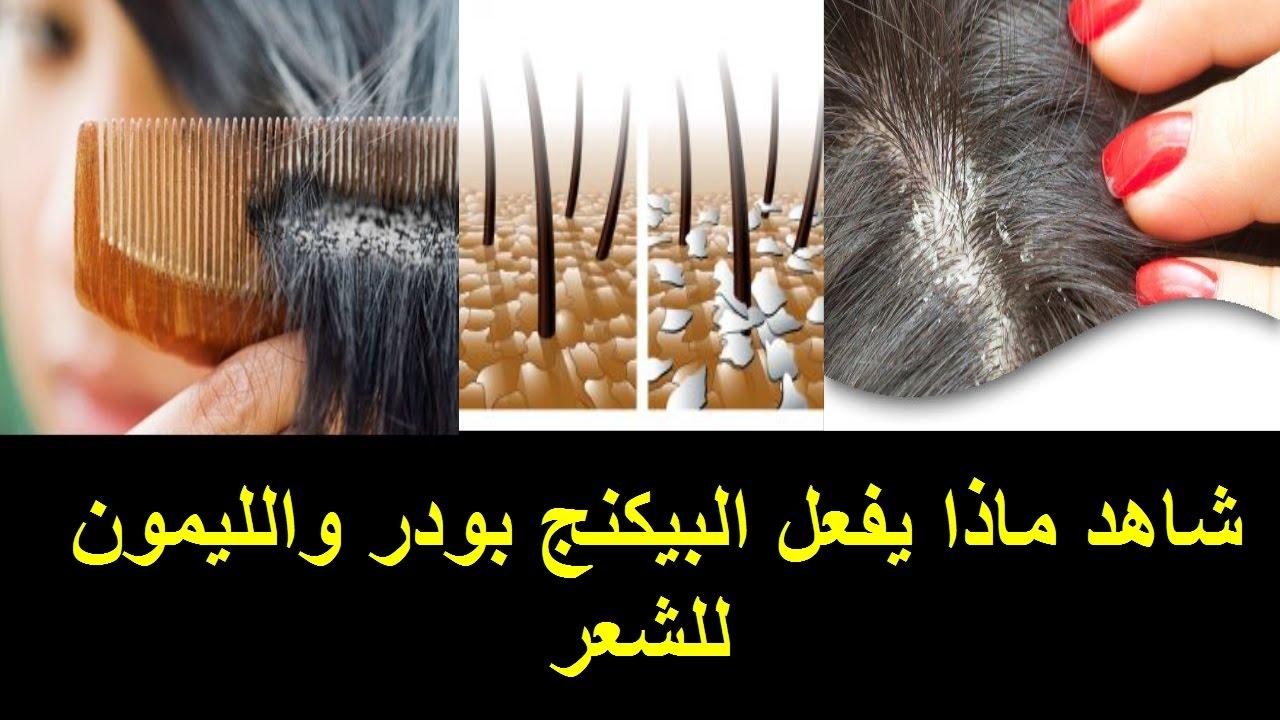 علاج قشرة الراس طرق التخلص من قشره الشعر حلوه خيال