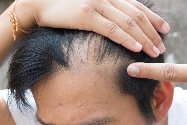 صورة علاج تساقط الشعر الدهني للرجال , اسباب تساقط الشعر