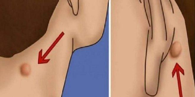 صور علاج الاكياس الدهنية تحت الجلد , ما هى طرق التخلص من الاكياس الدهنية بدون جراحة