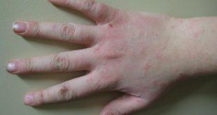 صور حساسية الجلد بعد الولادة , تعرف على اسباب حدوث حساسيه الجلد بعد الولادة