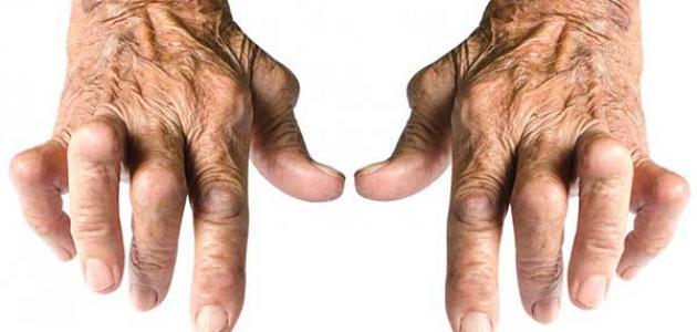 صور اعراض التهاب الاعصاب , الاعراض التي تبين وجود التهابات في الاعصاب