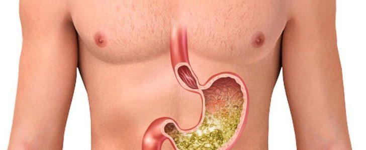 علاج التهاب راس المعدة الطرق السليمه لعلاج الم راس المعدة حلوه خيال