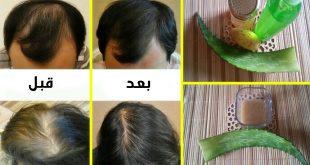 صورة انبات الشعر بسرعة , وصفات مهمة لانبات الشعر والقضاء على الصلع