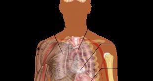 صورة ماهو مرض ذات الرئة , مالا تعرفه عن مرض ذات الرئة واخطاره