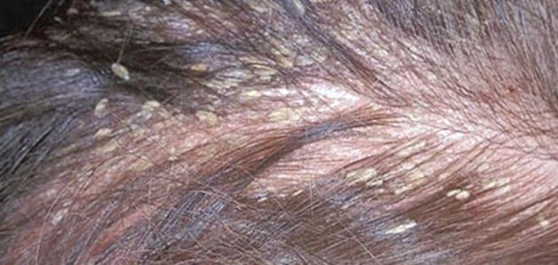 صورة علاج قمل الراس , تخلصى من قمل الراس نهائيا وبطرق سريعة