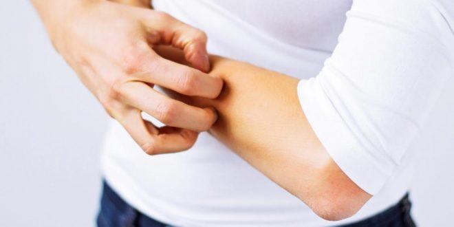 صورة علاج الحكة في الجسم بالاعشاب , حل للهرش في الجسم سريع