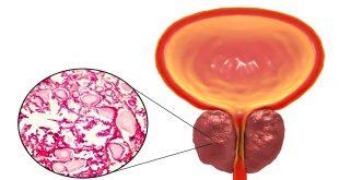 صورة علاج التهاب البروستاتا نهائيا , قل وداعا لالام البروستاتا