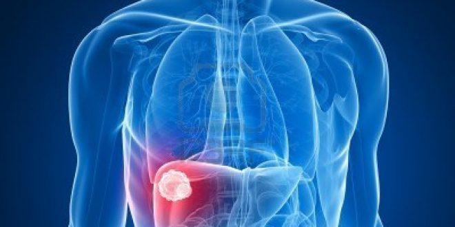 صورة اعراض فيروس سى النشط , اسباب واعراض فيروس سي وكيفية التعامل معه
