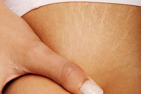 صورة التخلص من تشققات البطن بعد الولادة , علاج الخطوط البيضاء بطرق طبيعية